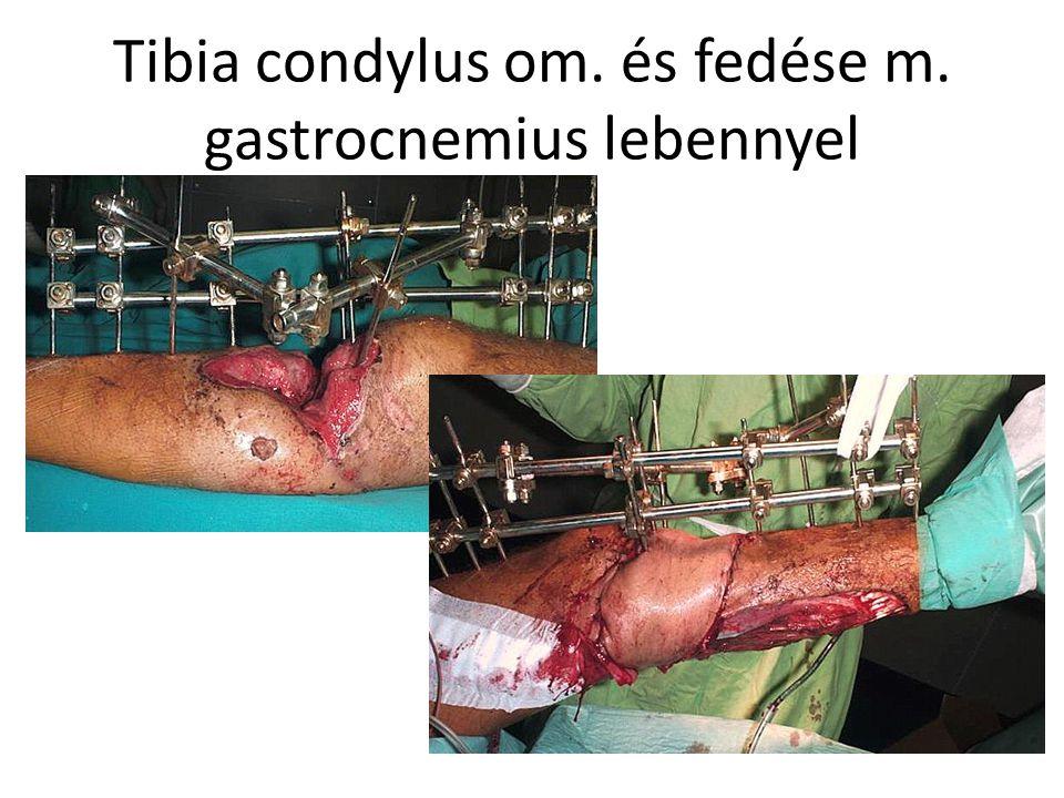 Tibia condylus om. és fedése m. gastrocnemius lebennyel