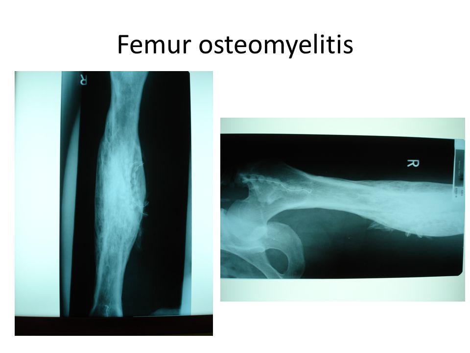 Femur osteomyelitis