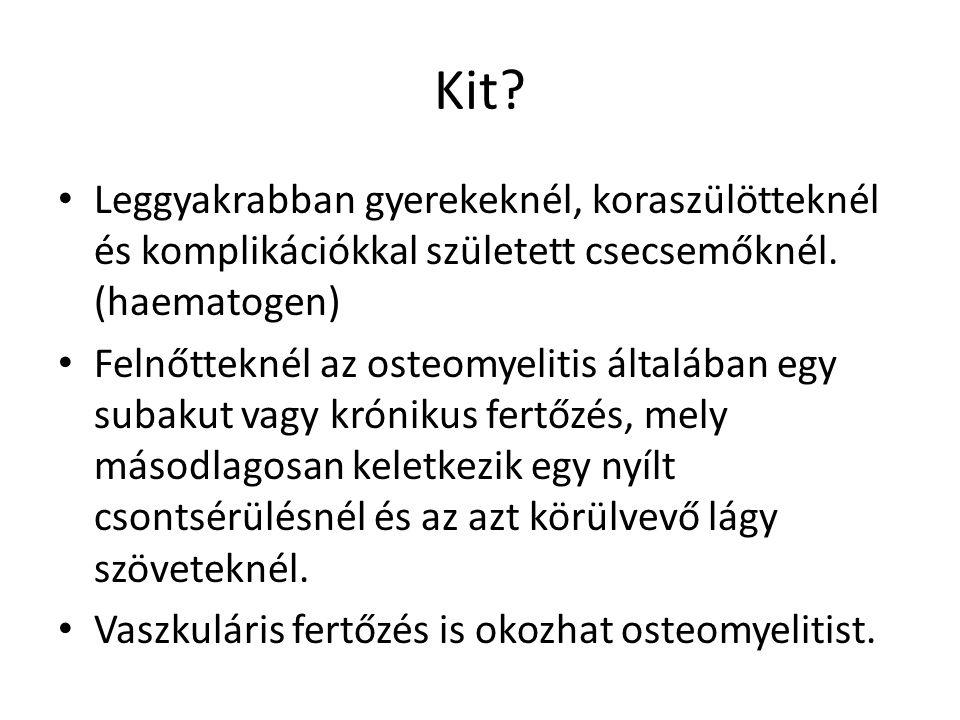 Tibia condylus osteomyelitis