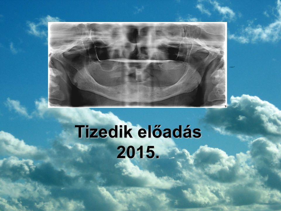 Tizedik előadás 2015.
