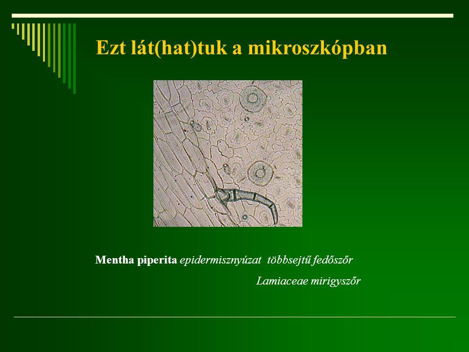 Ezt lát(hat)tuk a mikroszkópban Mentha piperita epidermisznyúzat többsejtű fedőszőr Lamiaceae mirigyszőr