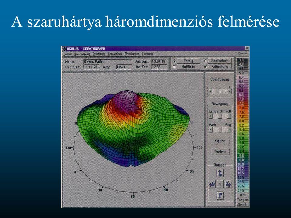 A szaruhártya háromdimenziós felmérése
