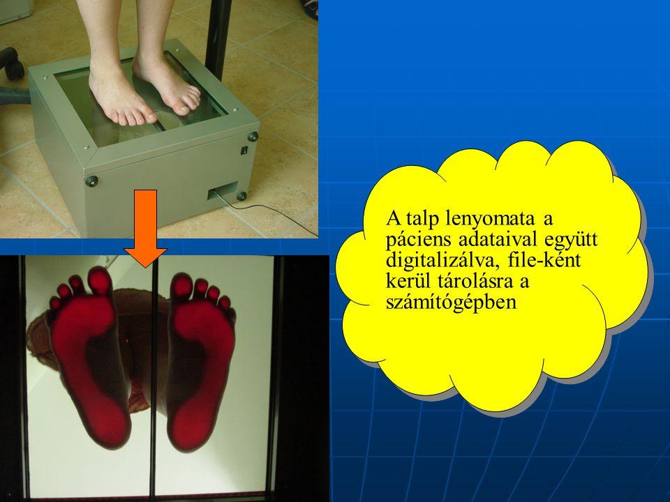 A talp lenyomata a páciens adataival együtt digitalizálva, file-ként kerül tárolásra a számítógépben