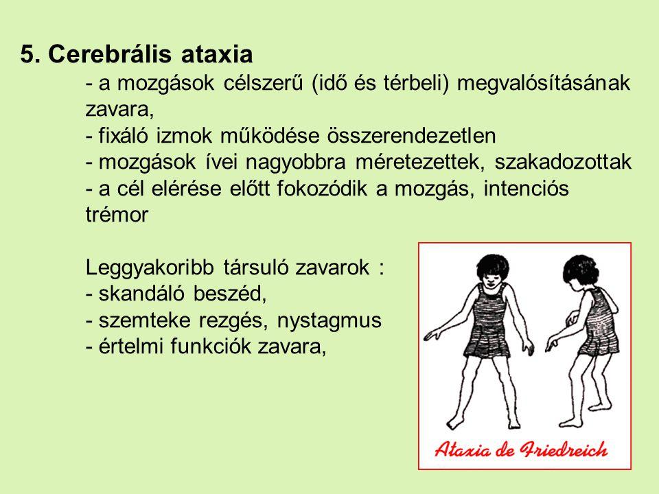 5. Cerebrális ataxia - a mozgások célszerű (idő és térbeli) megvalósításának zavara, - fixáló izmok működése összerendezetlen - mozgások ívei nagyobbr