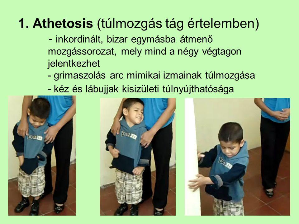 1. Athetosis (túlmozgás tág értelemben) - inkordinált, bizar egymásba átmenő mozgássorozat, mely mind a négy végtagon jelentkezhet - grimaszolás arc m