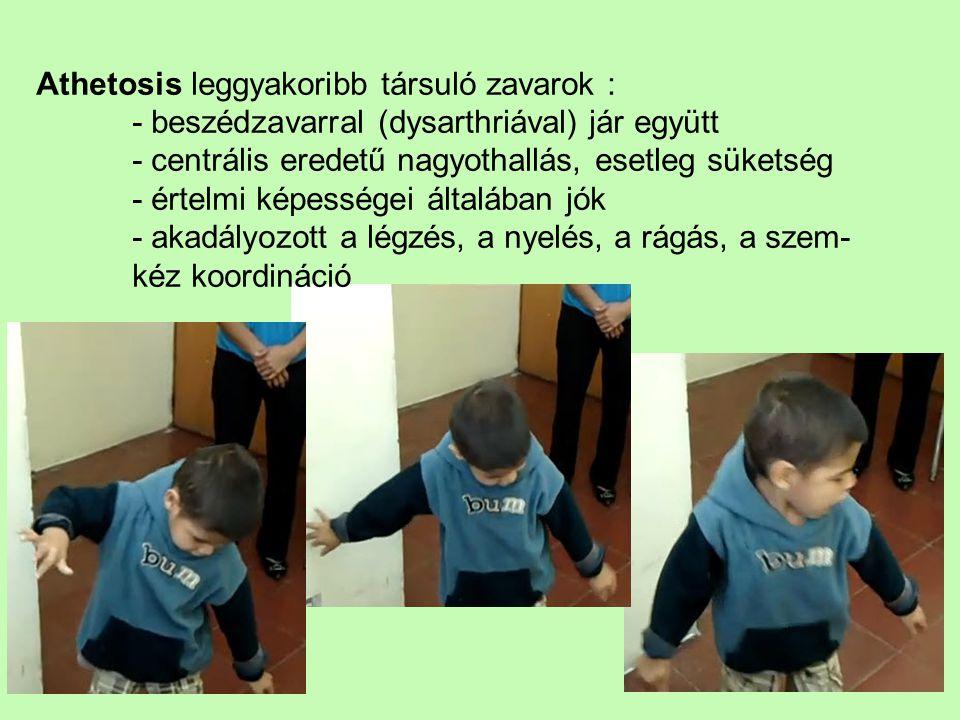 Athetosis leggyakoribb társuló zavarok : - beszédzavarral (dysarthriával) jár együtt - centrális eredetű nagyothallás, esetleg süketség - értelmi képe