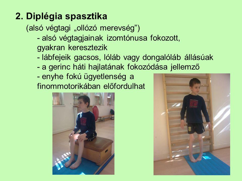 """2. Diplégia spasztika (alsó végtagi """"ollózó merevség"""") - alsó végtagjainak izomtónusa fokozott, gyakran keresztezik - lábfejeik gacsos, lóláb vagy don"""