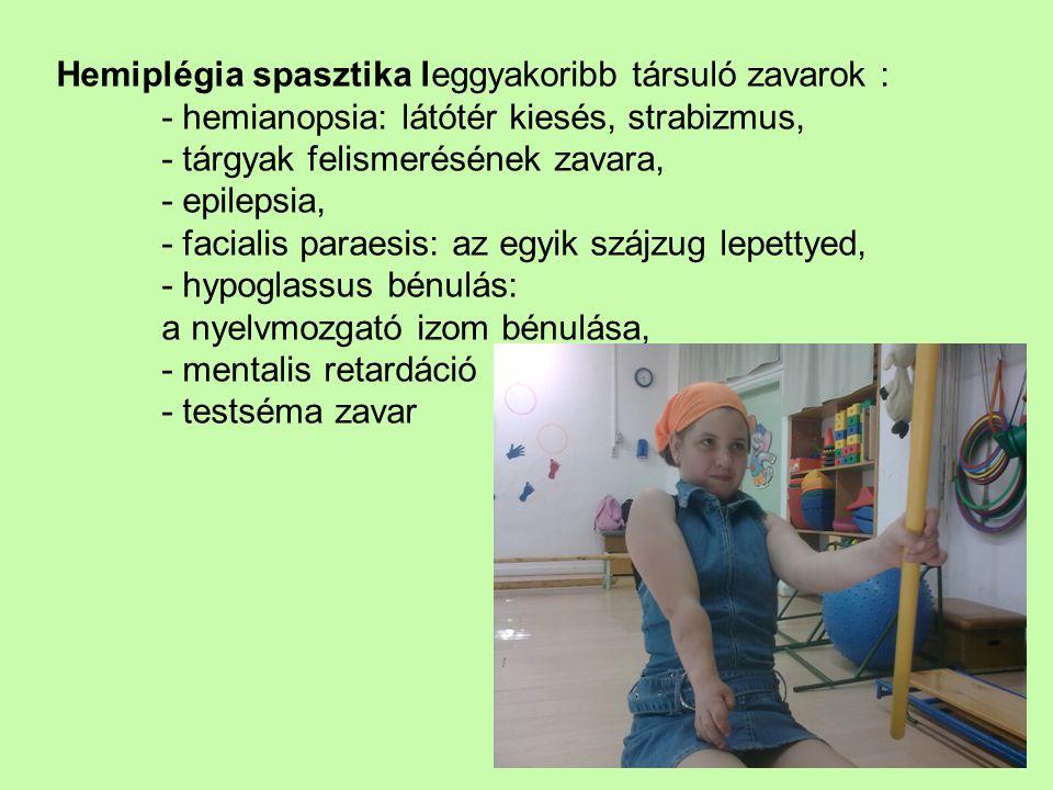 Hemiplégia spasztika leggyakoribb társuló zavarok : - hemianopsia: látótér kiesés, strabizmus, - tárgyak felismerésének zavara, - epilepsia, - faciali