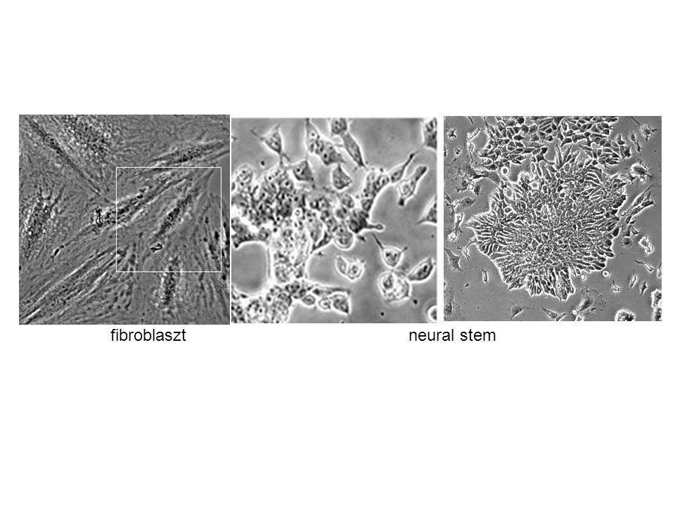 fibroblasztneural stem