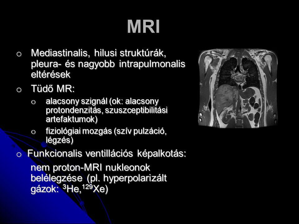 MRI o Mediastinalis, hilusi struktúrák, pleura- és nagyobb intrapulmonalis eltérések o Tüdő MR: o alacsony szignál (ok: alacsony protondenzitás, szusz