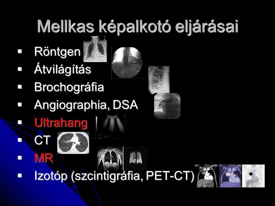 Tüdő ultrahang Sugárterhelés nélkül Ultrahang nem lát át a levegőn / normális tüdőn Műtermékeket keresünk
