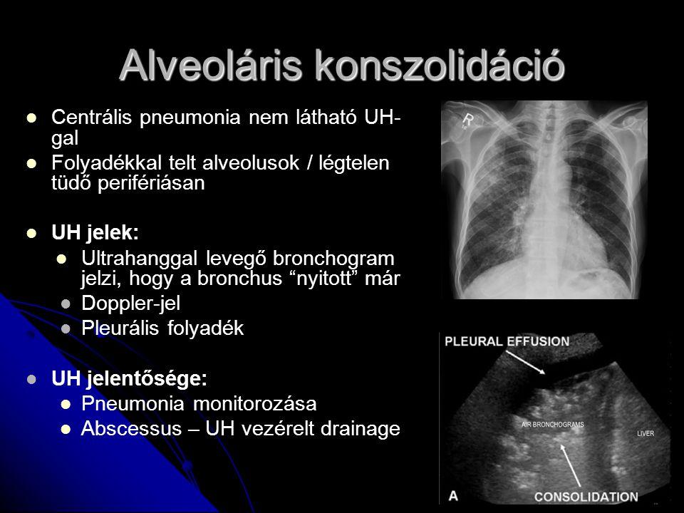 Alveoláris konszolidáció Centrális pneumonia nem látható UH- gal Folyadékkal telt alveolusok / légtelen tüdő perifériásan UH jelek: Ultrahanggal leveg
