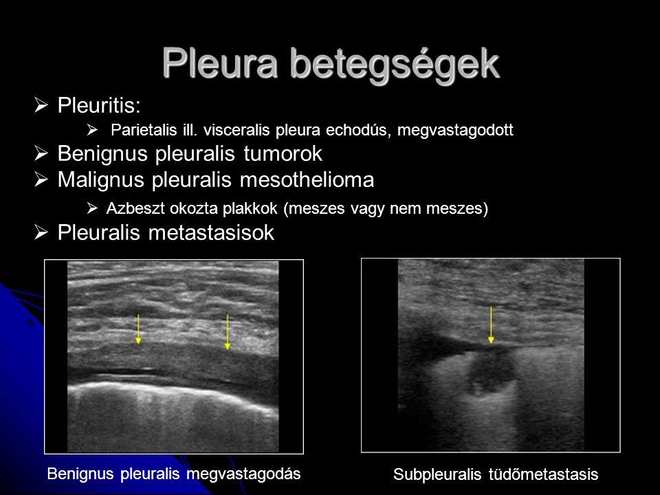 Pleura betegségek  Pleuritis:  Parietalis ill. visceralis pleura echodús, megvastagodott  Benignus pleuralis tumorok  Malignus pleuralis mesotheli