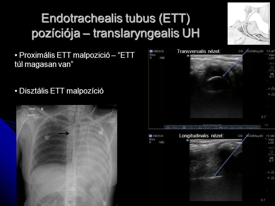 """Endotrachealis tubus (ETT) pozíciója – translaryngealis UH Proximális ETT malpozició – """"ETT túl magasan van"""" Disztális ETT malpozíció Transversalis né"""