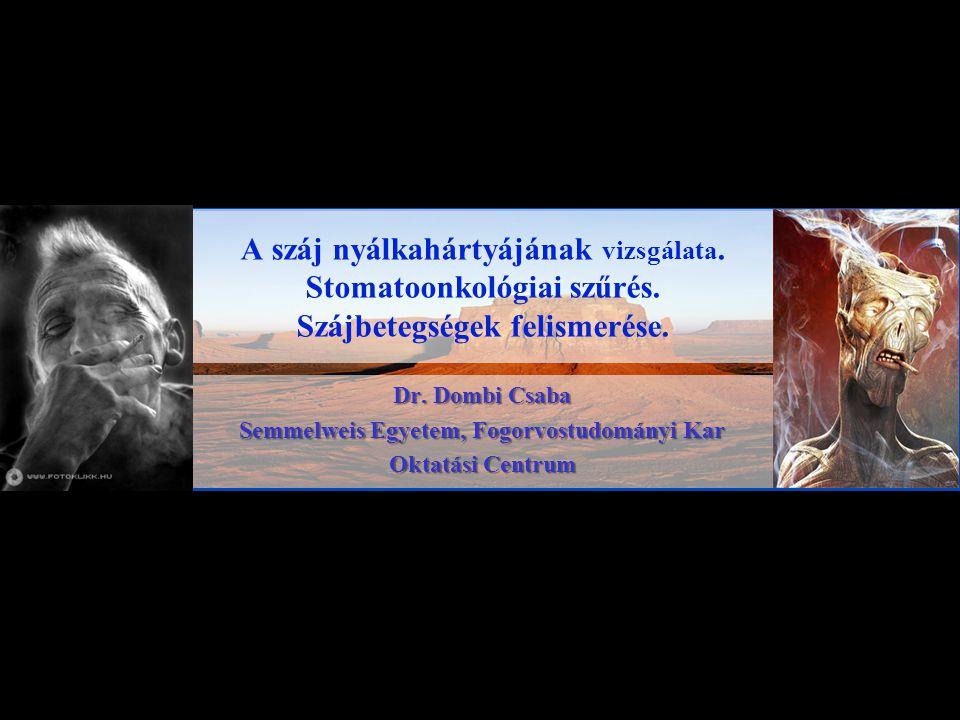 Dr. Dombi Csaba Semmelweis Egyetem, Fogorvostudományi Kar Oktatási Centrum A száj nyálkahártyájának vizsgálata. Stomatoonkológiai szűrés. Szájbetegség