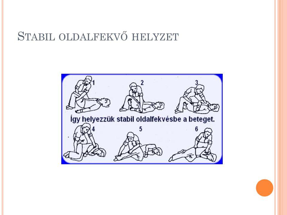 S TABIL OLDALFEKVŐ HELYZET