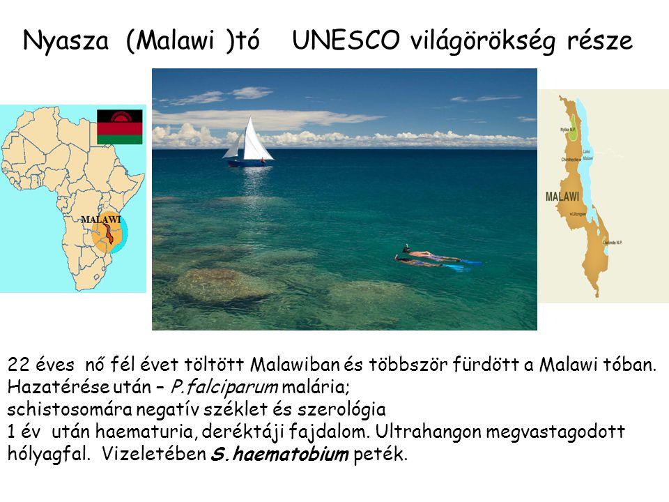 Nyasza (Malawi )tó UNESCO világörökség része 22 éves nő fél évet töltött Malawiban és többször fürdött a Malawi tóban. Hazatérése után – P.falciparum