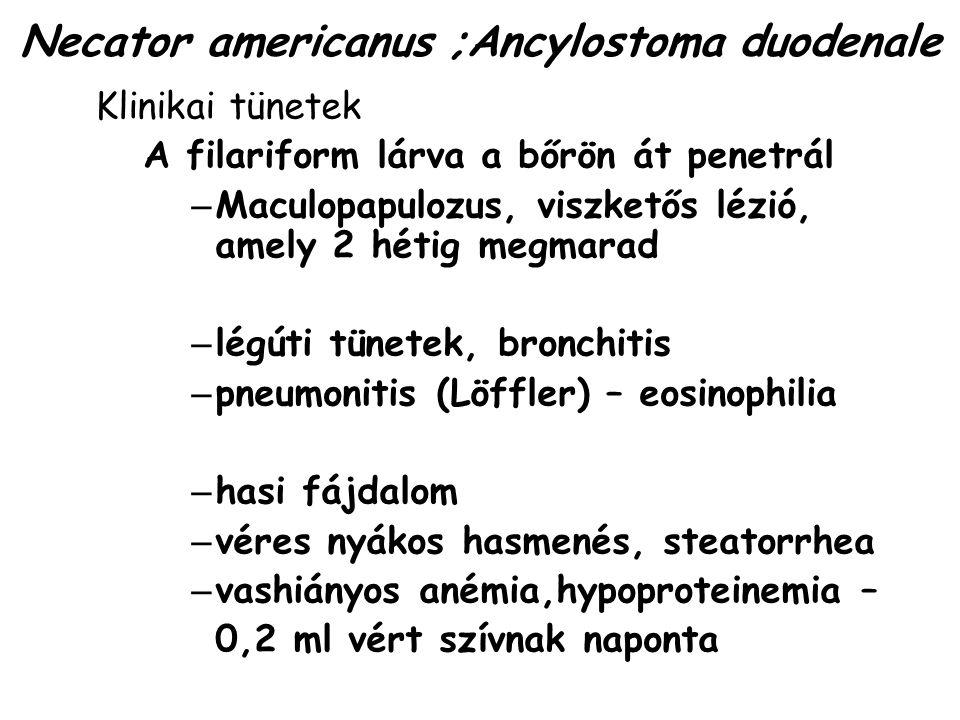Necator americanus ;Ancylostoma duodenale Klinikai tünetek A filariform lárva a bőrön át penetrál – Maculopapulozus, viszketős lézió, amely 2 hétig me