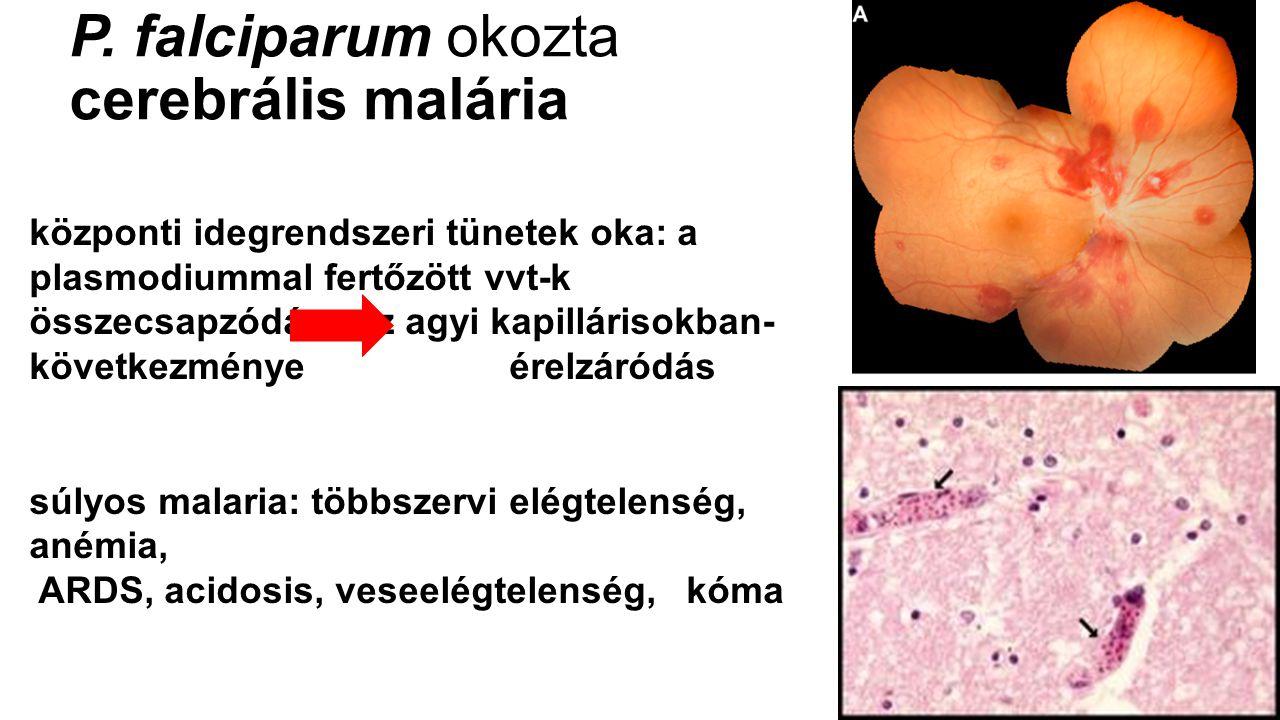 P. falciparum okozta cerebrális malária központi idegrendszeri tünetek oka: a plasmodiummal fertőzött vvt-k összecsapzódása az agyi kapillárisokban- k