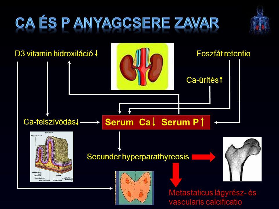 D3 vitamin hidroxiláció Ca-felszívódás Foszfát retentio Ca-ürítés Secunder hyperparathyreosis Metastaticus lágyrész- és vascularis calcificatio Serum