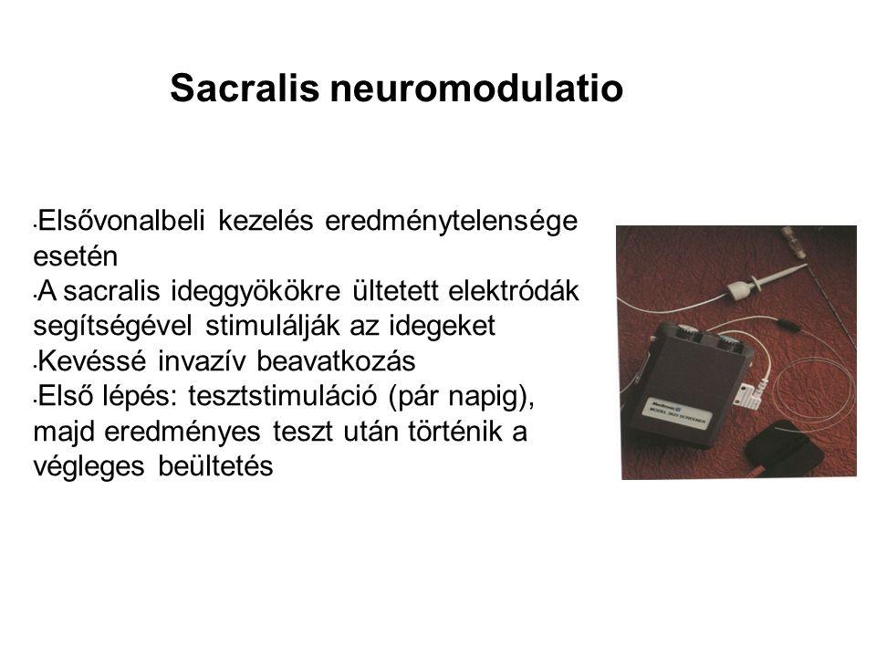 Sacralis neuromodulatio Elsővonalbeli kezelés eredménytelensége esetén A sacralis ideggyökökre ültetett elektródák segítségével stimulálják az idegeket Kevéssé invazív beavatkozás Első lépés: tesztstimuláció (pár napig), majd eredményes teszt után történik a végleges beültetés