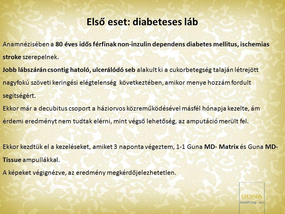 Első eset: diabeteses láb Anamnézisében a 80 éves idős férfinak non-inzulin dependens diabetes mellitus, ischemias stroke szerepelnek. Jobb lábszárán