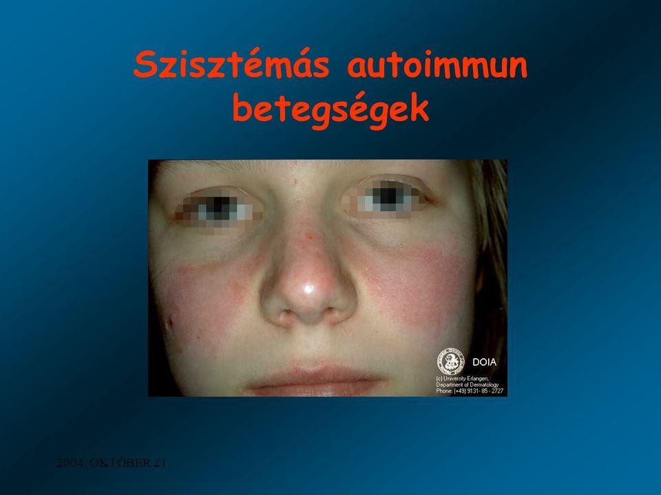 2004. OKTÓBER 21. Szisztémás autoimmun betegségek