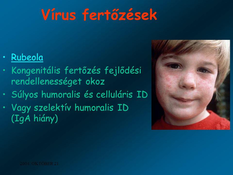 2004. OKTÓBER 21. Vírus fertőzések Rubeola Kongenitális fertőzés fejlődési rendellenességet okoz Súlyos humoralis és celluláris ID Vagy szelektív humo