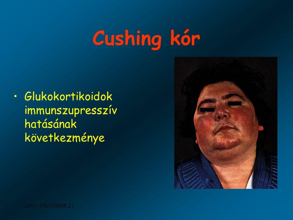2004. OKTÓBER 21. Cushing kór Glukokortikoidok immunszupresszív hatásának következménye
