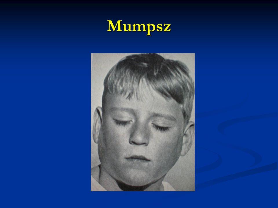 Mumpsz