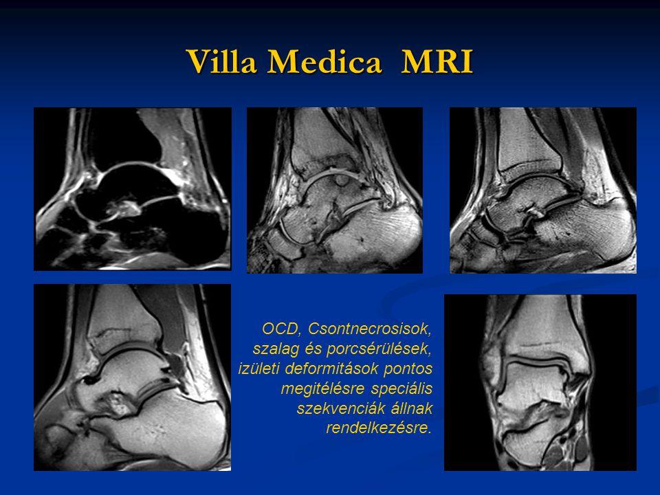 OCD, Csontnecrosisok, szalag és porcsérülések, izületi deformitások pontos megitélésre speciális szekvenciák állnak rendelkezésre.