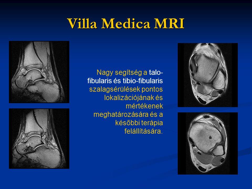 Villa Medica MRI Nagy segítség a talo- fibularis és tibio-fibularis szalagsérülések pontos lokalizációjának és mértékenek meghatározására és a későbbi