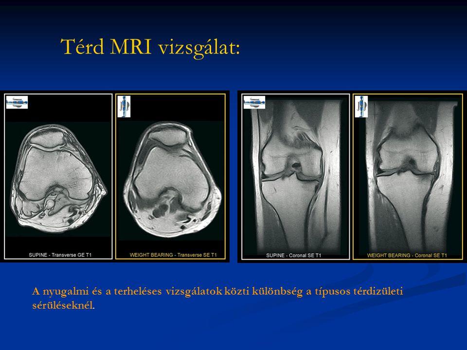 Térd MRI vizsgálat: A nyugalmi és a terheléses vizsgálatok közti különbség a típusos térdizületi sérüléseknél.