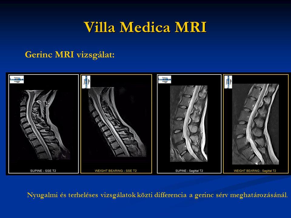 Villa Medica MRI Gerinc MRI vizsgálat: Nyugalmi és terheléses vizsgálatok közti differencia a gerinc sérv meghatározásánál.