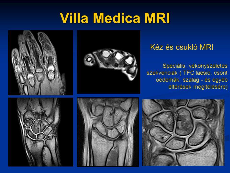 Villa Medica MRI Kéz és csukló MRI Speciális, vékonyszeletes szekvenciák ( TFC laesio, csont oedemák, szalag - és egyéb eltérések megitélésére)