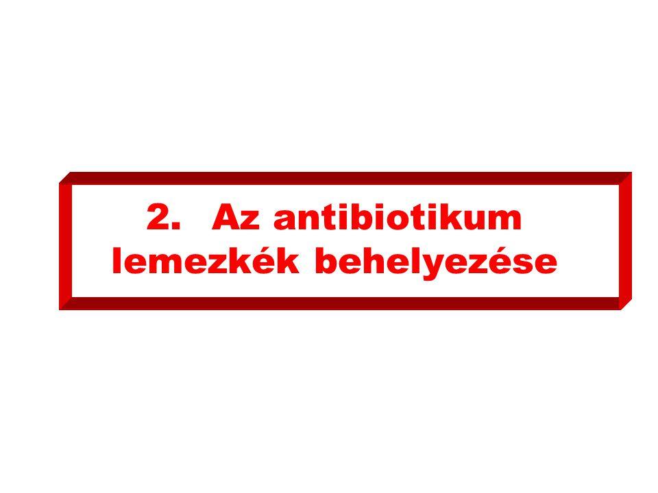 2.Az antibiotikum lemezkék behelyezése