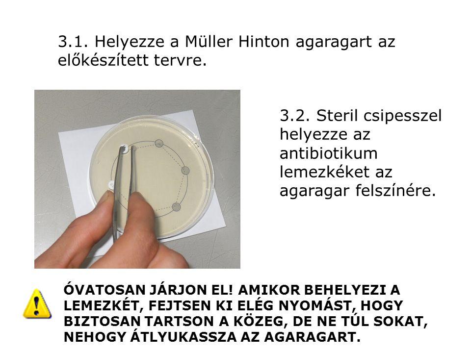3.1. Helyezze a Müller Hinton agaragart az előkészített tervre. 3.2. Steril csipesszel helyezze az antibiotikum lemezkéket az agaragar felszínére. ÓVA