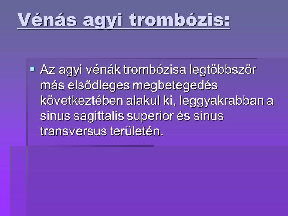 Vénás agyi trombózis:  Az agyi vénák trombózisa legtöbbször más elsődleges megbetegedés következtében alakul ki, leggyakrabban a sinus sagittalis superior és sinus transversus területén.