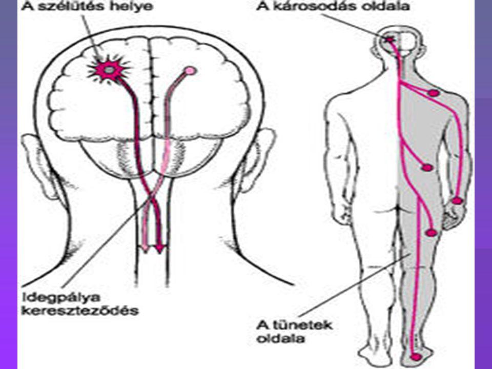 A stroke rizikó faktorai (nem befolyásolható)  cerebrovascularis esemény:  az agyi vérkeringés károsodása, ami érző és motoros kieséssel jár  Stroke osztályozása:  Ischaemias (oxigén hiányos)  Vérzéses