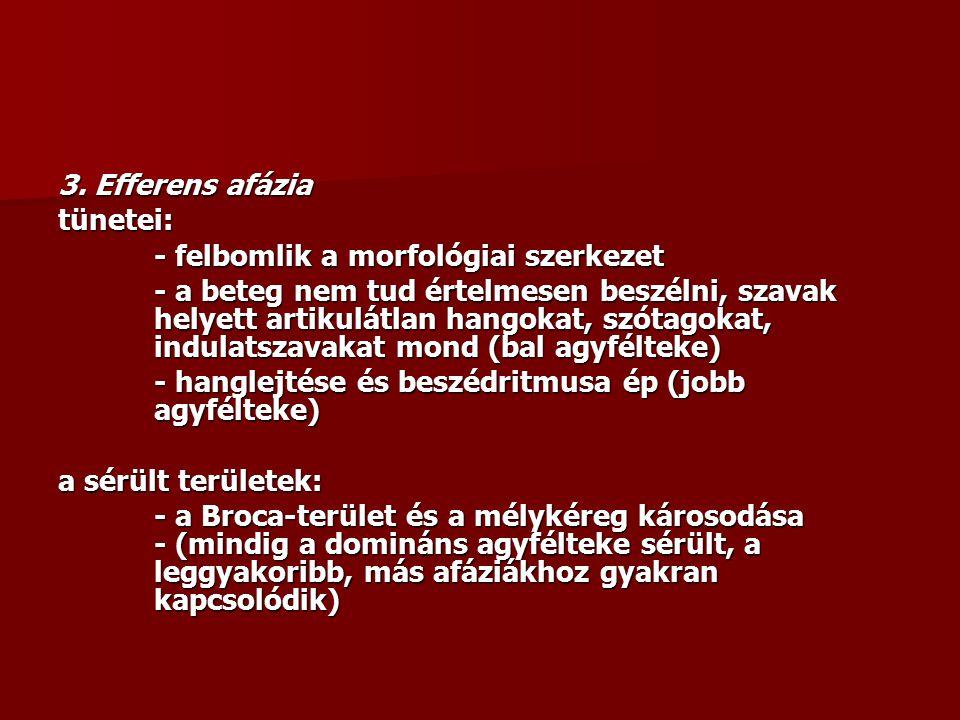 3. Efferens afázia tünetei: - felbomlik a morfológiai szerkezet - a beteg nem tud értelmesen beszélni, szavak helyett artikulátlan hangokat, szótagoka