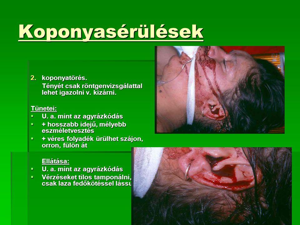 Koponyasérülések 2.koponyatörés.Tényét csak röntgenvizsgálattal lehet igazolni v.