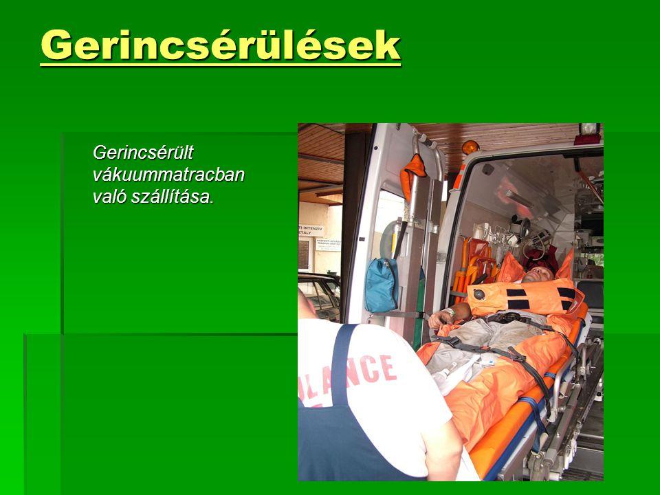 Gerincsérülések Gerincsérült vákuummatracban való szállítása.