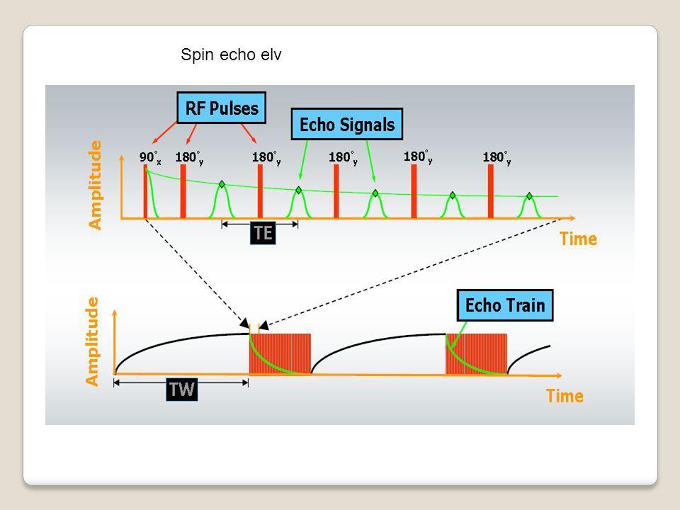 Spin echo elv