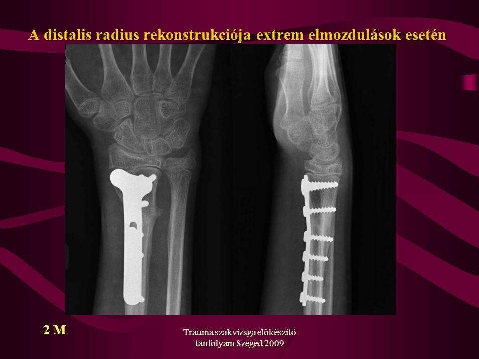 Trauma szakvizsga előkészítő tanfolyam Szeged 2009 A distalis radius rekonstrukciója extrem elmozdulások esetén 2 M