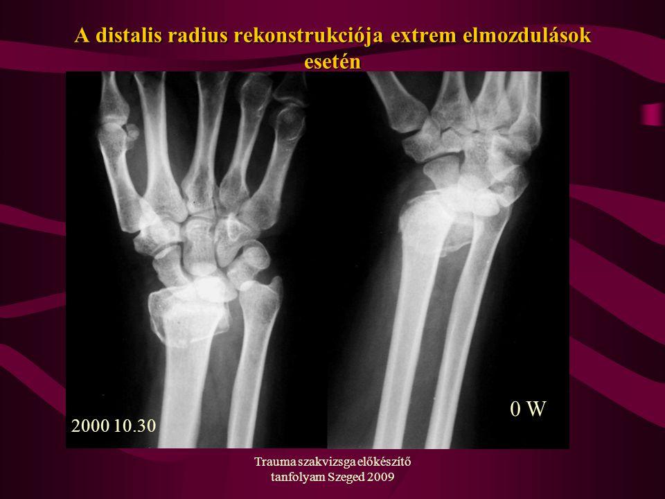 Trauma szakvizsga előkészítő tanfolyam Szeged 2009 A distalis radius rekonstrukciója extrem elmozdulások esetén 2000 10.30 0 W