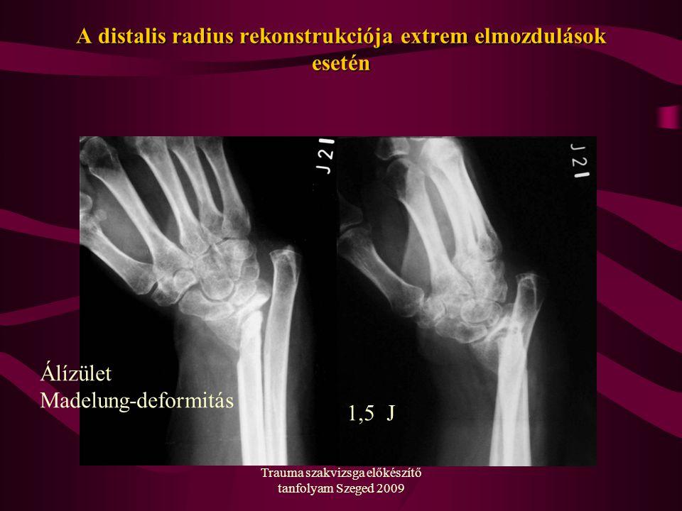 Trauma szakvizsga előkészítő tanfolyam Szeged 2009 A distalis radius rekonstrukciója extrem elmozdulások esetén Álízület Madelung-deformitás 1,5 J
