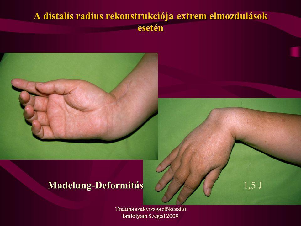 Trauma szakvizsga előkészítő tanfolyam Szeged 2009 A distalis radius rekonstrukciója extrem elmozdulások esetén Madelung-Deformitás1,5 J