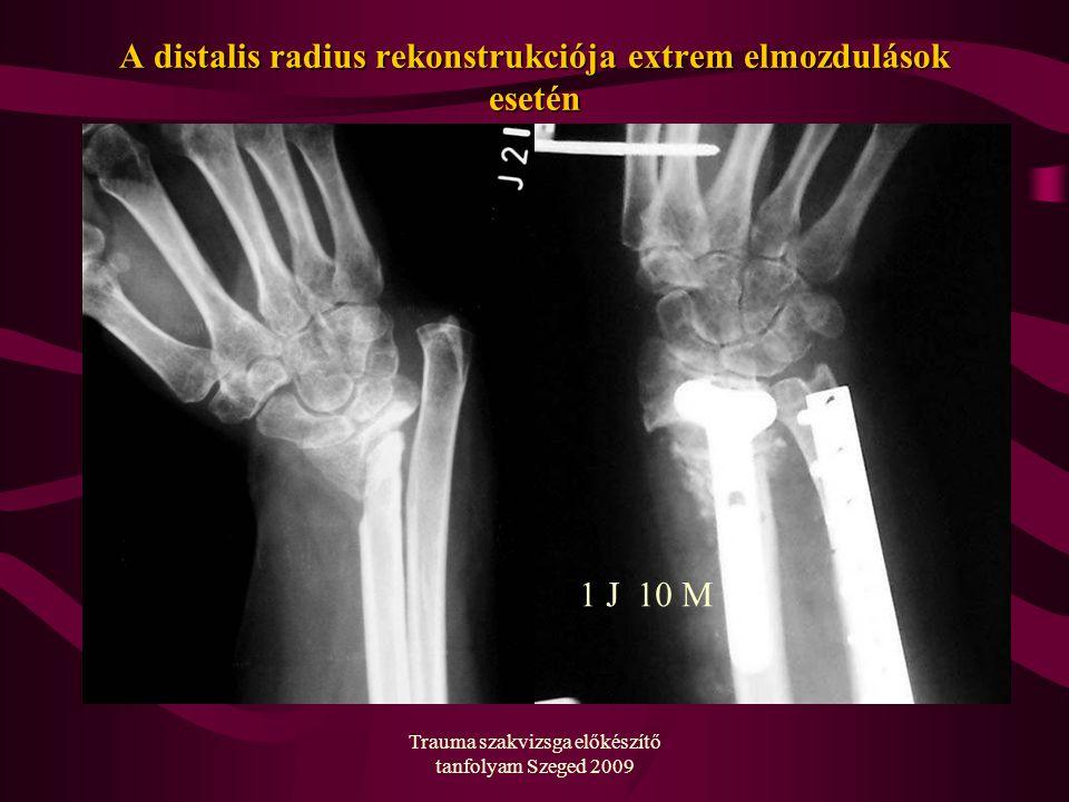 Trauma szakvizsga előkészítő tanfolyam Szeged 2009 A distalis radius rekonstrukciója extrem elmozdulások esetén 1 J 10 M