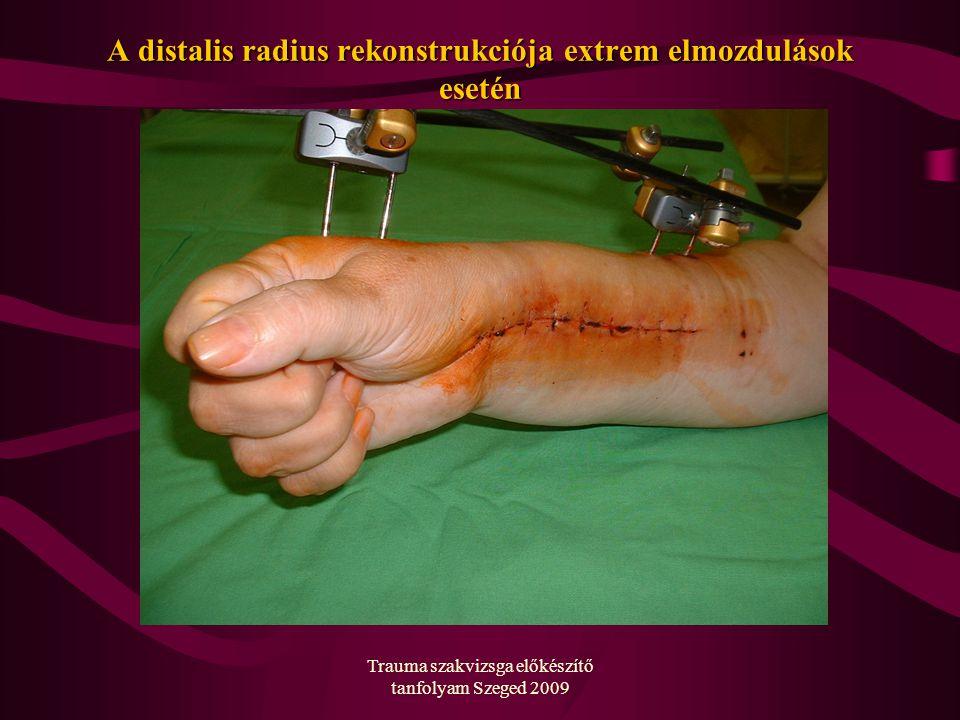 Trauma szakvizsga előkészítő tanfolyam Szeged 2009 A distalis radius rekonstrukciója extrem elmozdulások esetén
