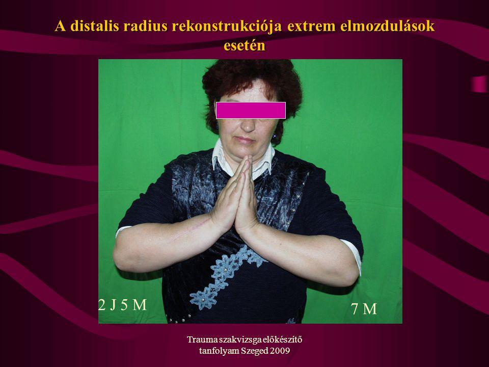 Trauma szakvizsga előkészítő tanfolyam Szeged 2009 A distalis radius rekonstrukciója extrem elmozdulások esetén 2 J 5 M 7 M